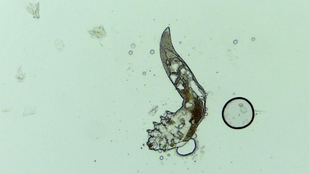 Az első 10 furcsa parazita. 12 biztos jele annak, hogy parazita van a testedben   szabopince.hu