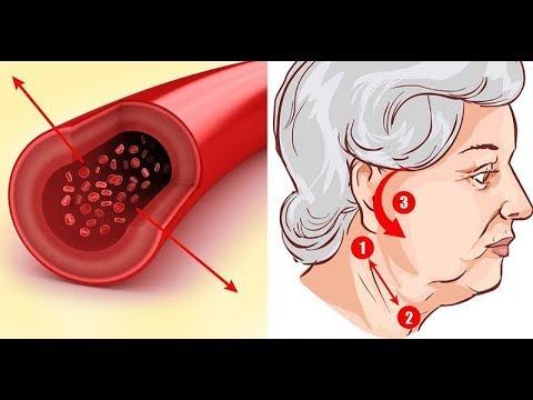 távolítsa el a test parazitáit népi gyógyszerekkel