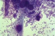 Hogyan lehet kenet eltávolítani a húgycsőből férfiakon, Endoscopos tevékenység | Urológiai Klinika