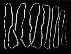 hogy néznek ki a férgek a székletben készítmények az epehólyag parazitáira
