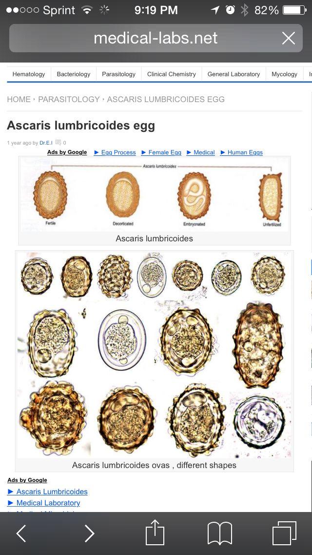 helminth tojások, féregtojások