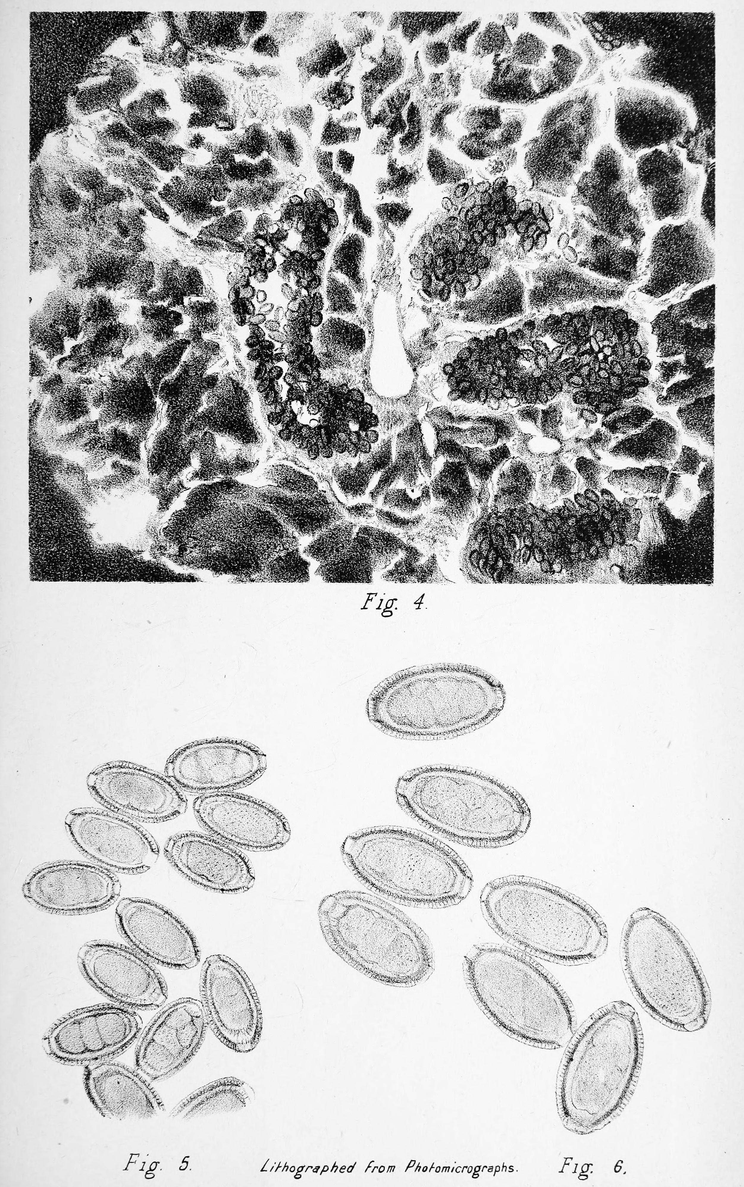 helminthiasis worms kezelés