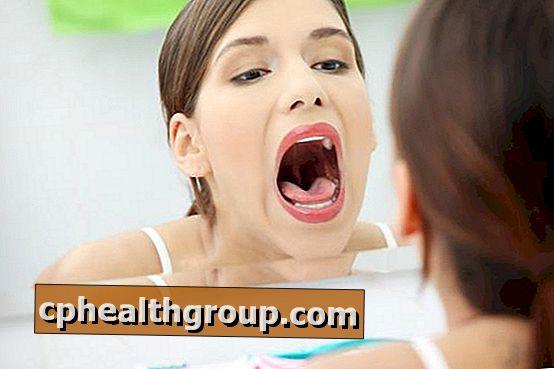 miért savanyú a szája)