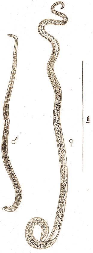 trichinosis jellemző)