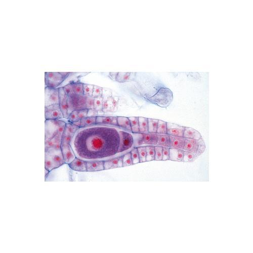 Hogy néz ki Trichinella. Emberre halálos fertőzés lehet a Bács-Kiskun Megye megye disznóiban