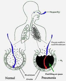 strongyloidosis szövődmények