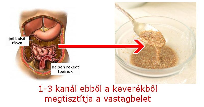 vastagbél tisztítja paraziták recepteket)