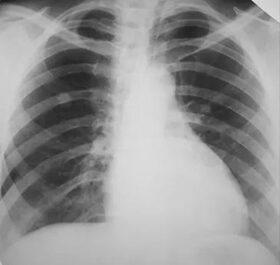 tüdőrák jelei)