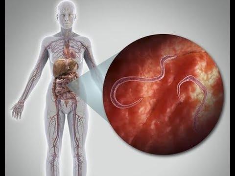 A pinworms hőmérsékleten meghalnak