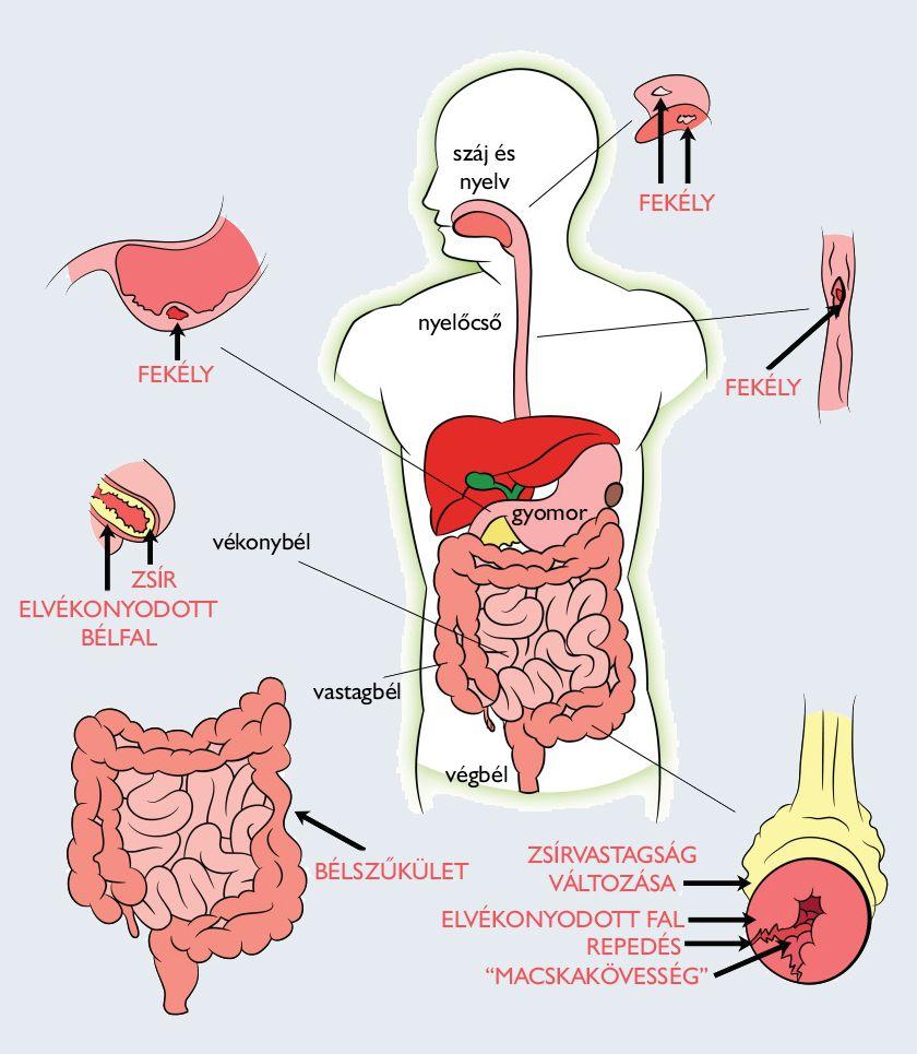 gyógyszerek az emberi test parazitjai számára fotó)