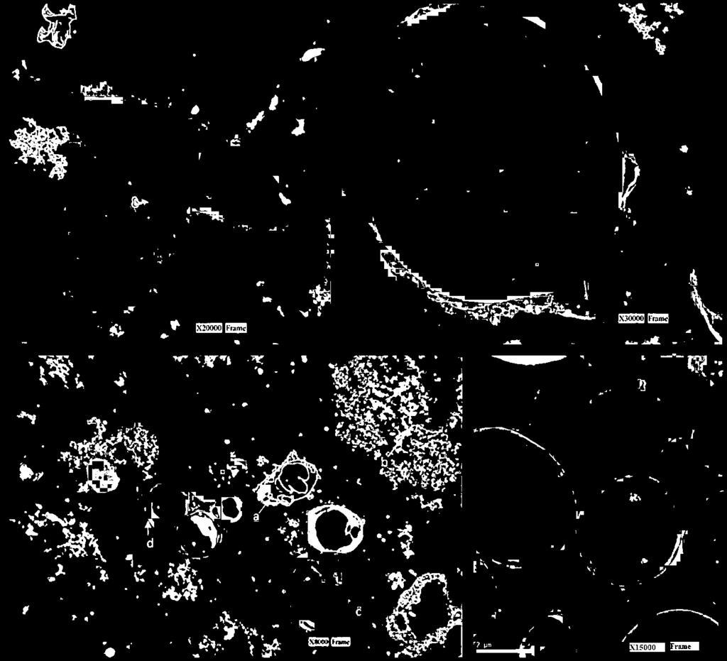 Helminthiasis mit kell tenni, Enterobiasis