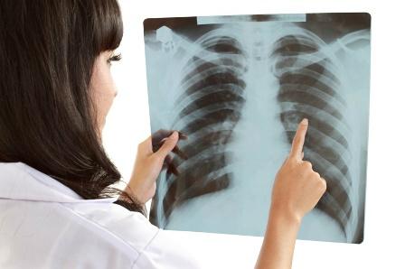 tüdőrák esetén szájszag van