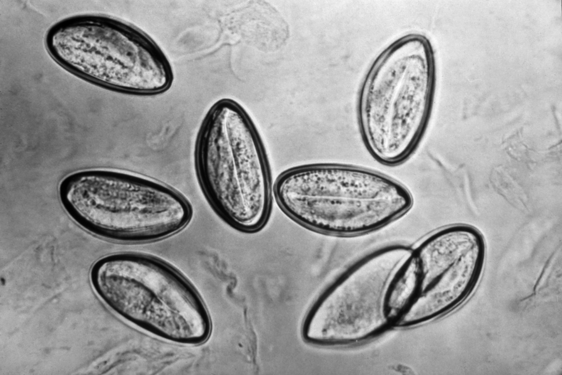 pinworm enterobiasis)