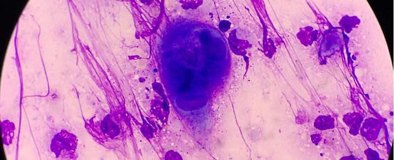 kenet transzkriptum mikroszkópos vizsgálata)