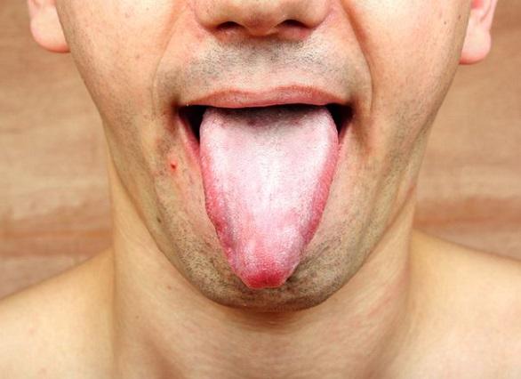 ha a nyelv fehér és rossz lehelet