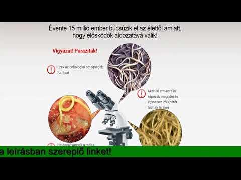az enterobiasis diagnosztizálásának fő módszere a