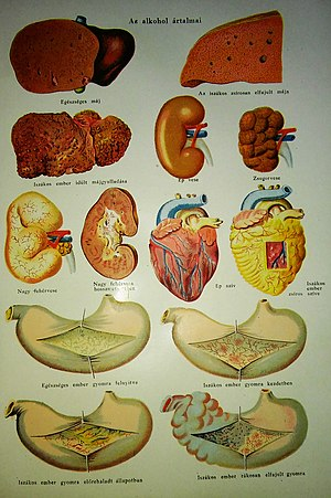 az emberi test parazitjaibol szarmazo termekek