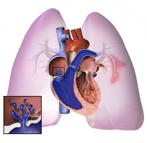 Szívféreg szűrésről mindenkinek- röviden is, részletesen is