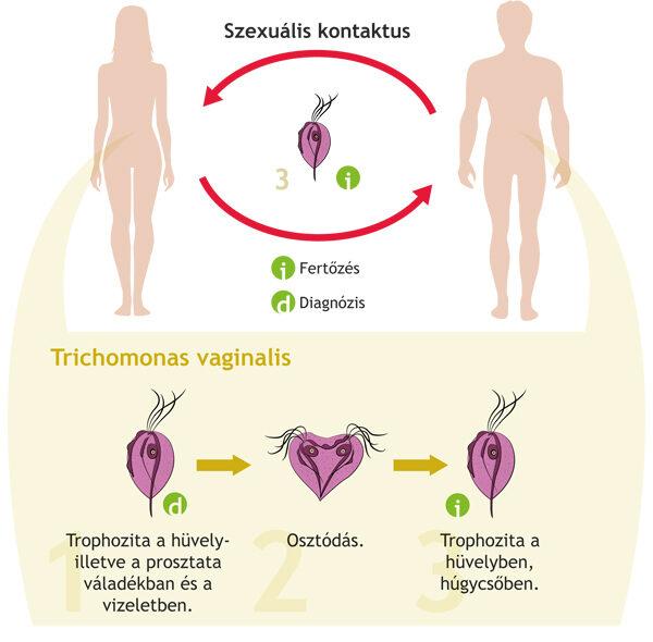 paraziták a vizelet tünetei