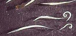 A pinworms hőmérsékleten meghalnak)