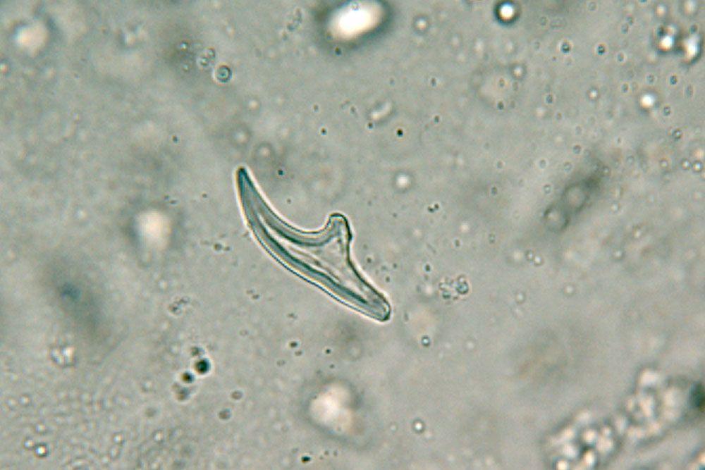 a tojás strongyloidosis)