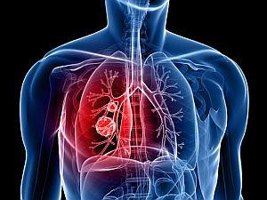 tüdőrák jelei fereg az izomban