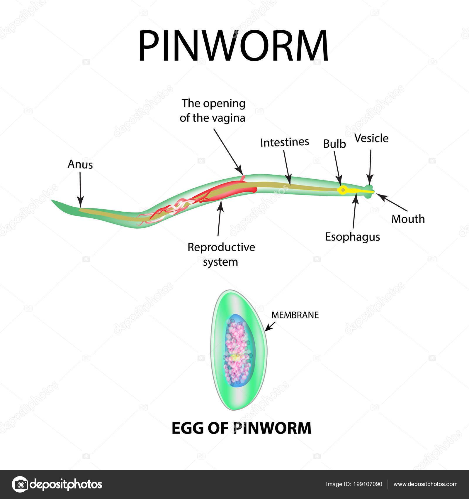 Hogyan lehet eltávolítani pinworms felnőttek - Szövődmények March - Enterobiasis autoinvasion