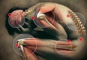a helminthiasis és a kezelés tünetei