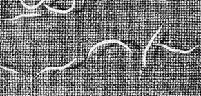 tojások trichocephalosis