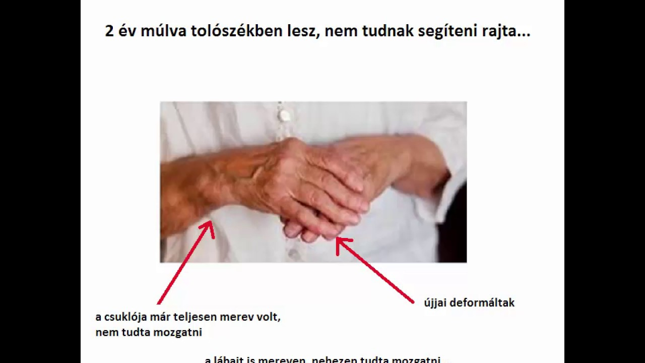 giardiasis és ízületi fájdalmak)