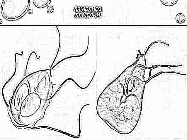 szindrómák giardiasissal