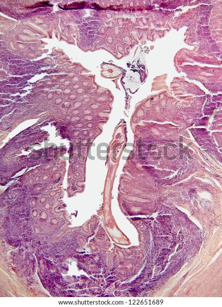 Pinworm parazita megelőző tabletták