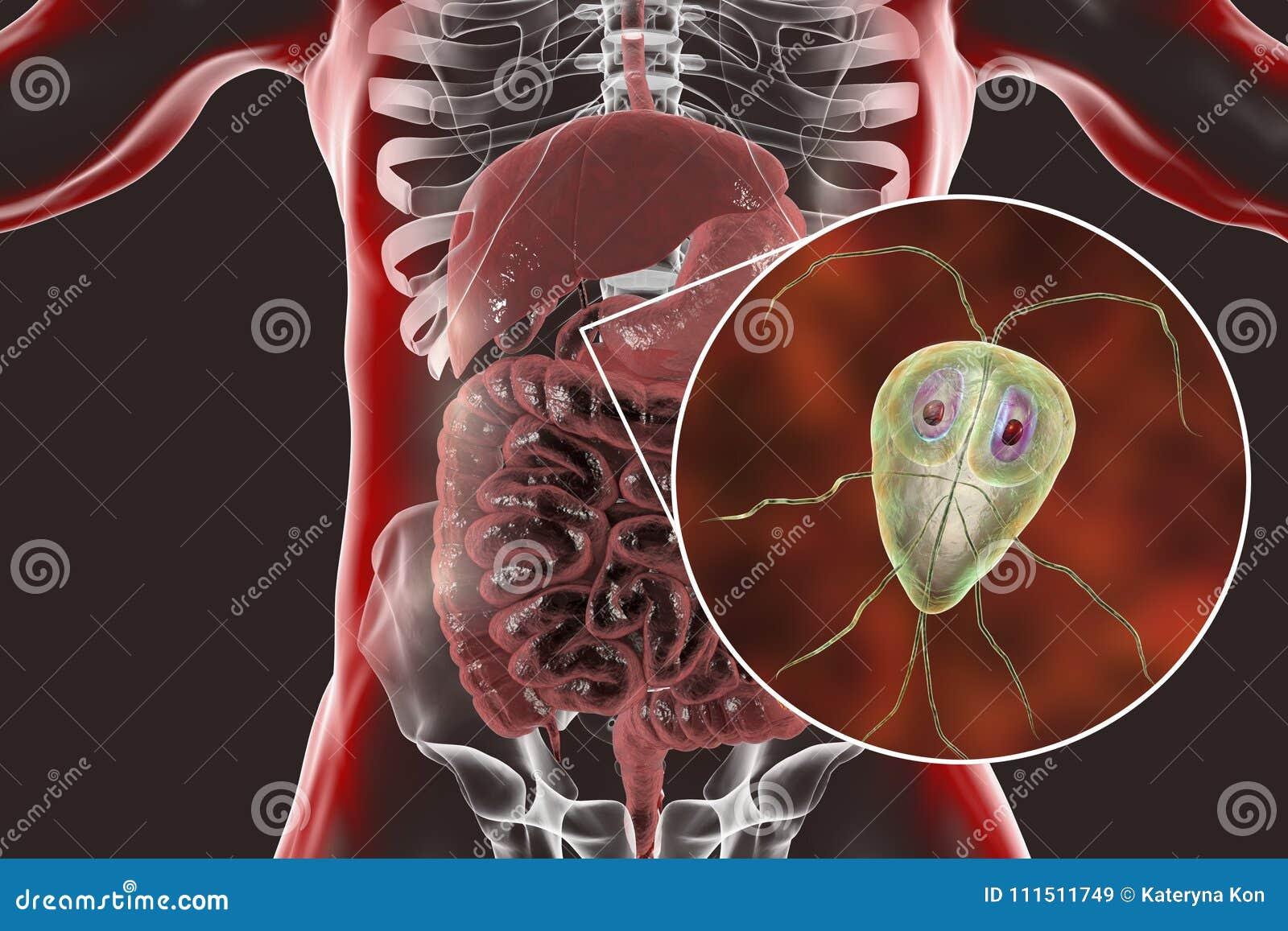 Trichopolum Giardia-tól gyermekekig