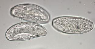 Trichinella tojás
