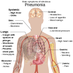 parazita emberi bőr kezelés alatt férgek kezelése 2020