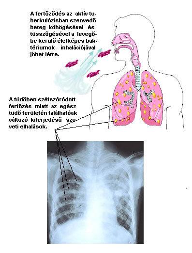 A tüdőben előforduló pinwormák tünetei. Paraziták a tüdőben tünetek