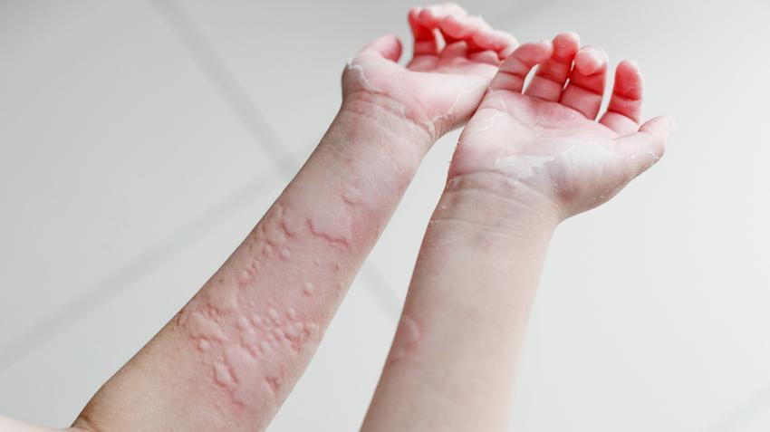 krónikus helmintikus fertőzések