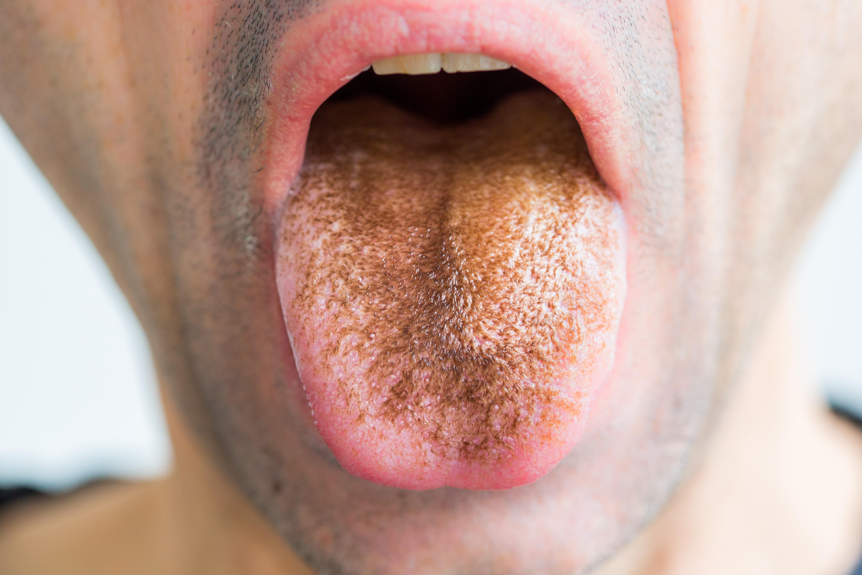 foltos nyelv és rossz lehelet