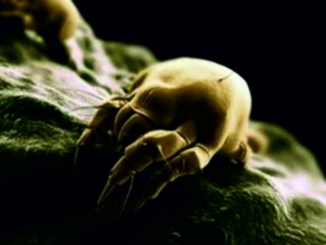 a paraziták kezelése a hajban hozza ki a férgeket és lefogy
