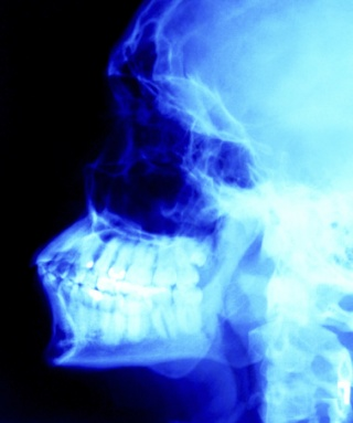 Okozhatja-e emésztési probléma a rossz leheletet? - Rossz lehelet omez