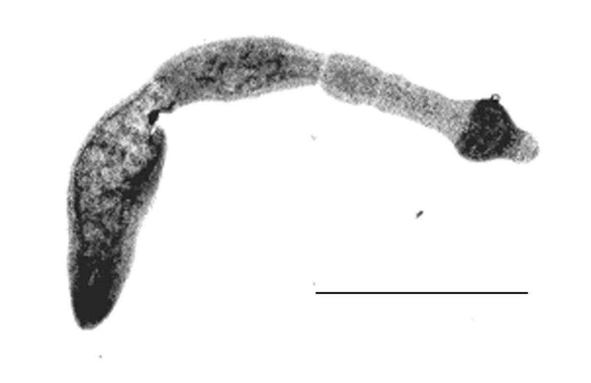 ankylostomiasis kazaksha)