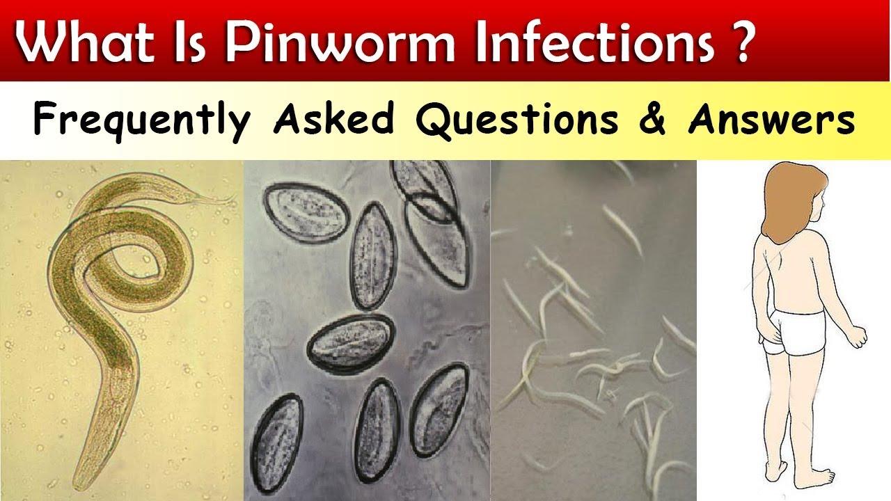 az enterobius vermicularis milyen betegséget okoz