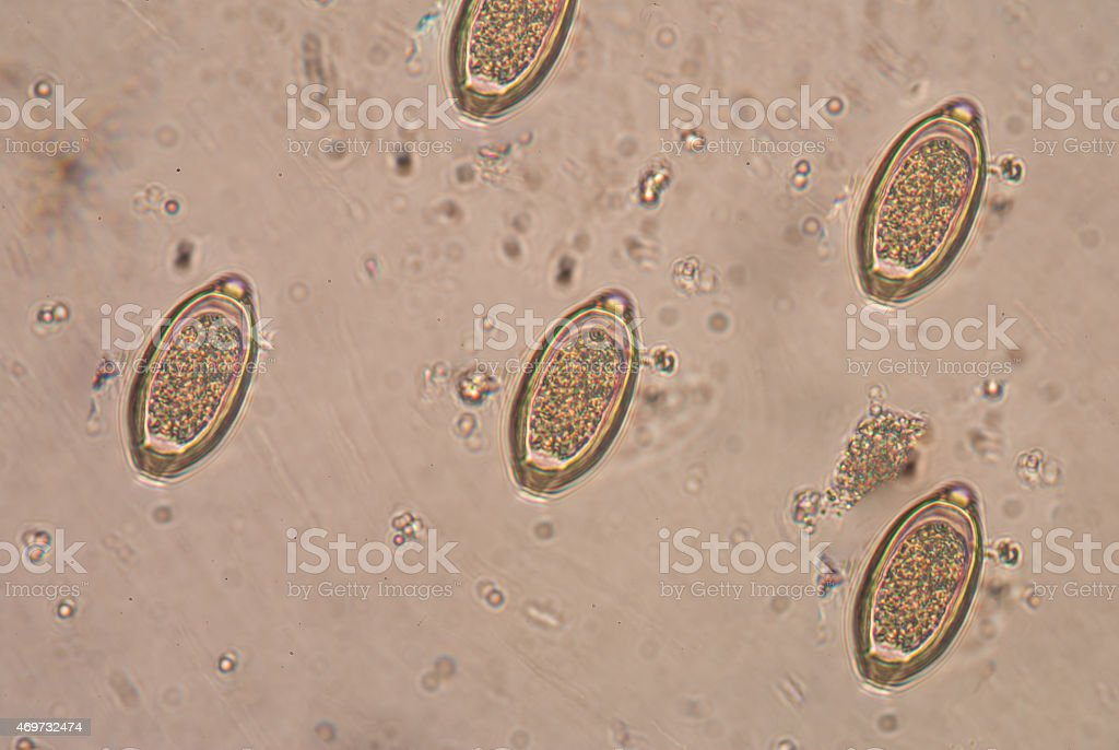 a bőr ankilostomiasis)