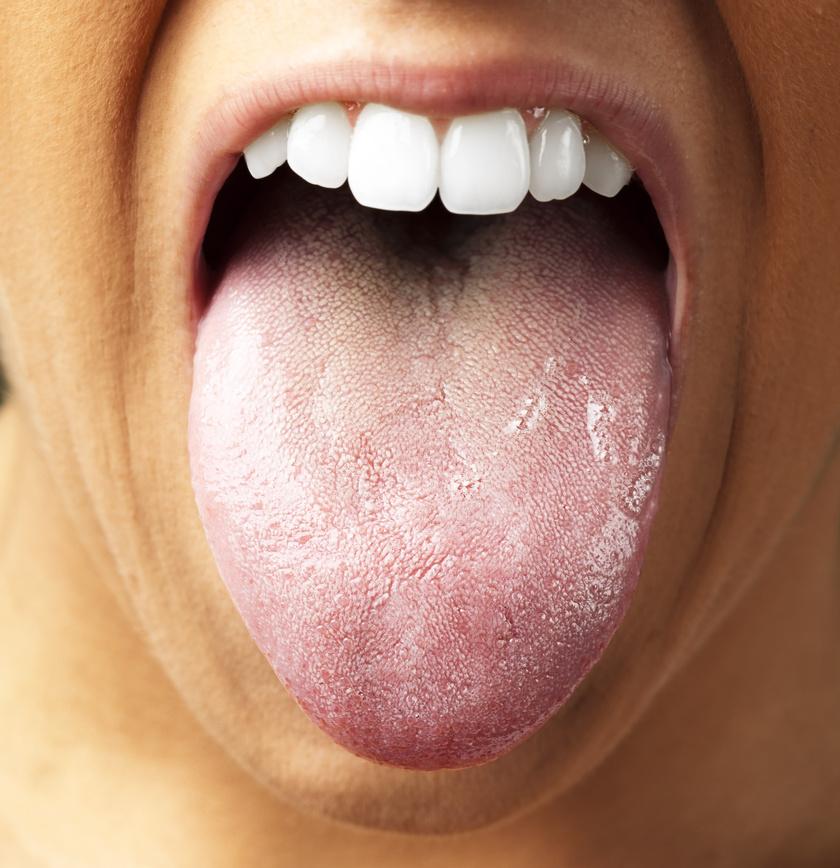 rossz lehelet nyelv okozta)