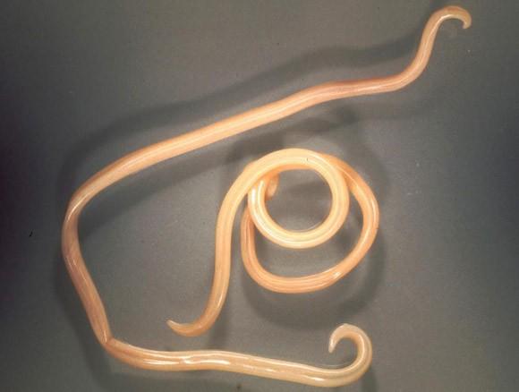 galandféreg a keszeg férgek hőmérséklete gyermekkorban tünetek