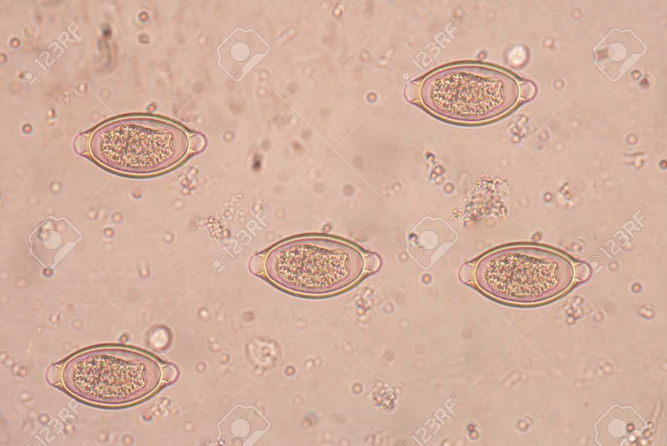 a trichocephalosis is)