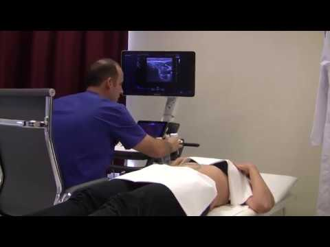helminth ultrahang