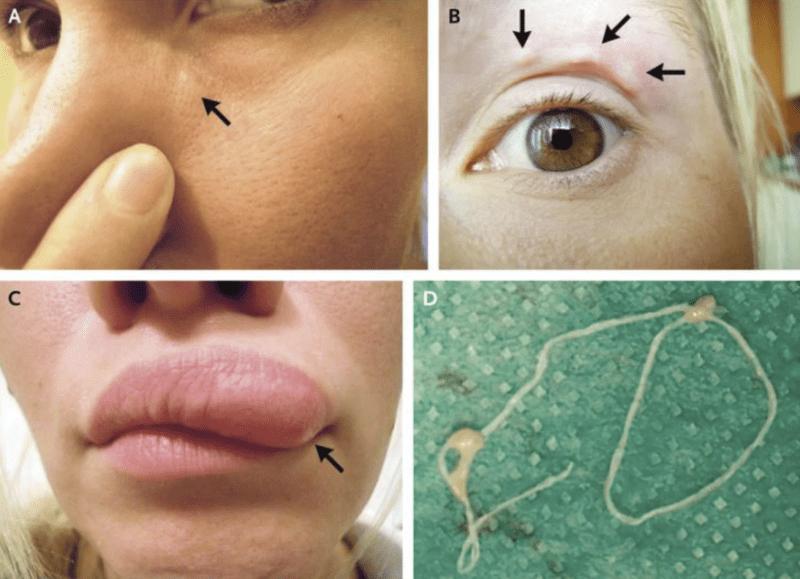 féreg paraziták az emberek bőrén