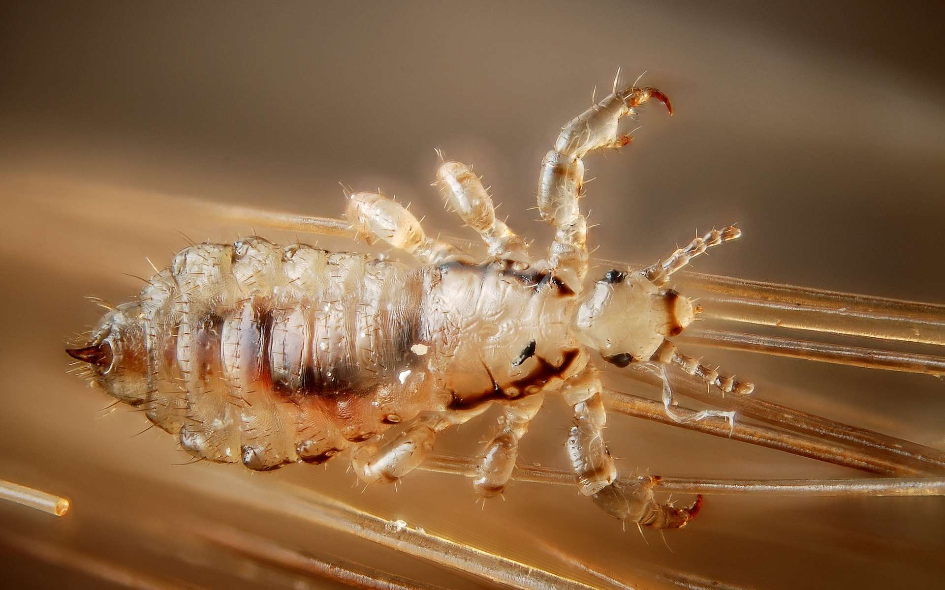 les parasites chez l homme paraziták kezelése gyermekeknél