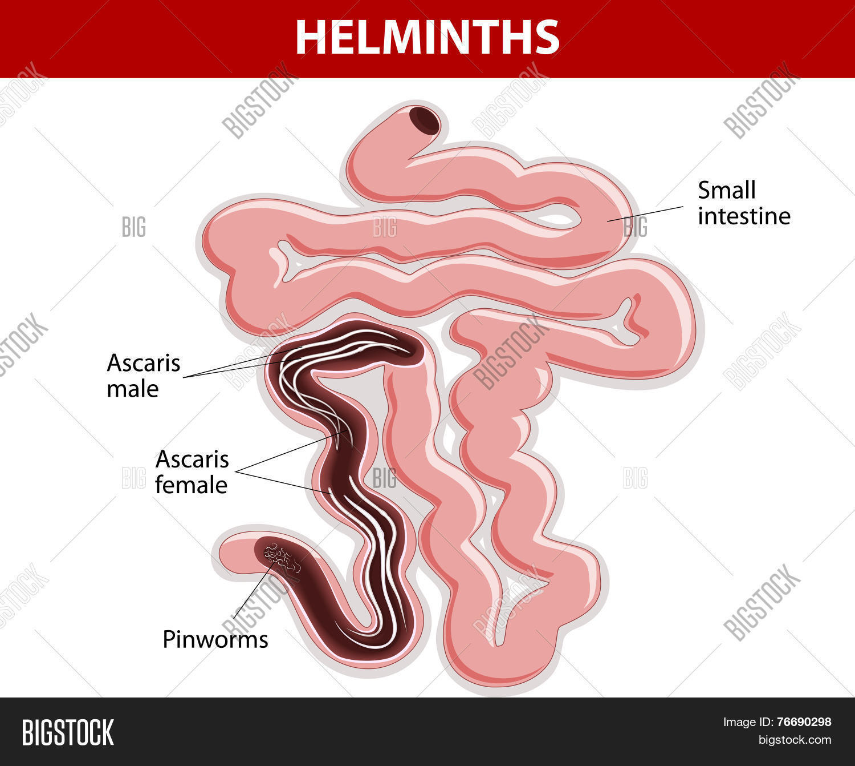 Helminth invázió gyermek tünetei,, A helminthic invázió fajtái